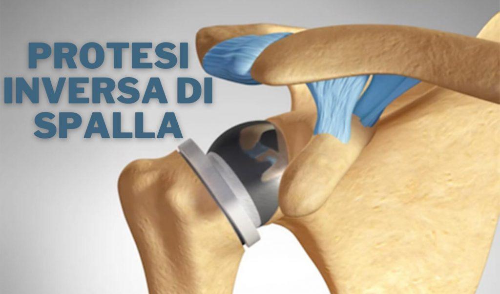 Shoulder Center protesi